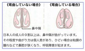 鼻中隔弯曲