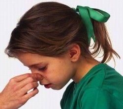 鼻血の正しい止め方